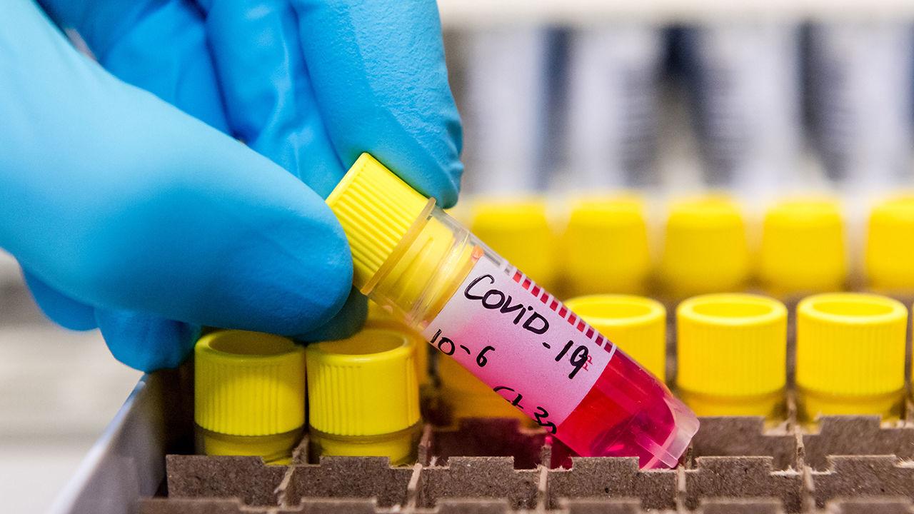 Virology Lab Work As Europe On Coronavirus High Alert